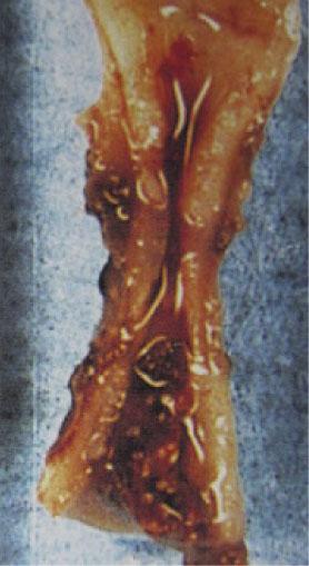 標準的なバイポーラで凝固された動脈